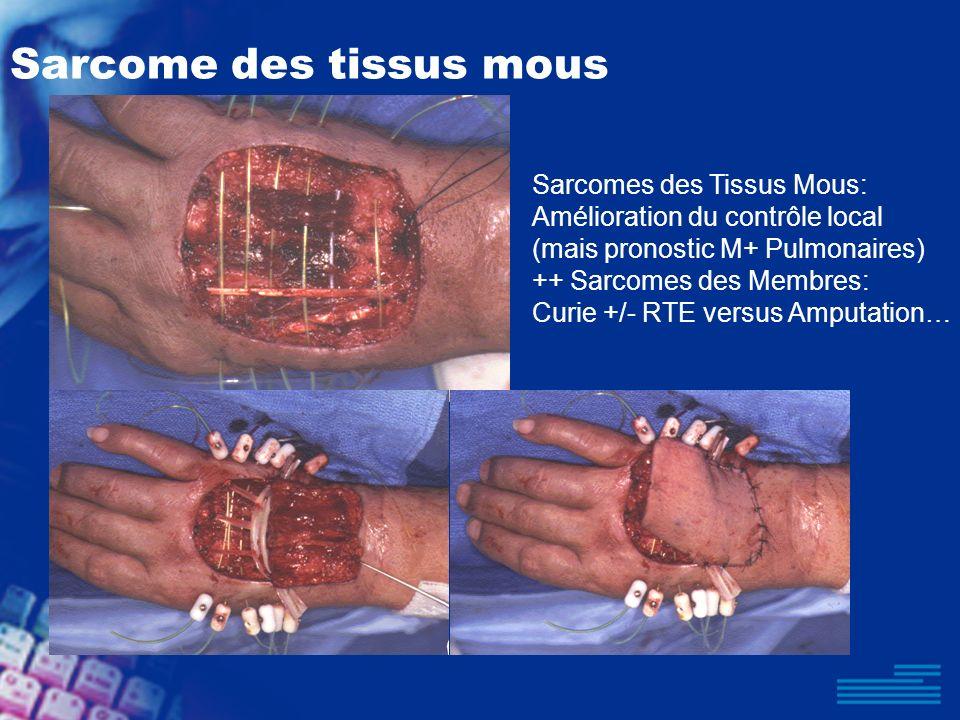 Sarcome des tissus mous