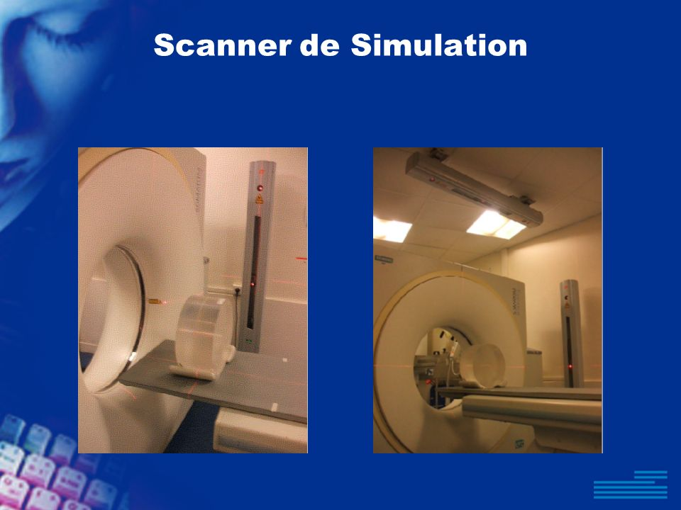 Scanner de Simulation