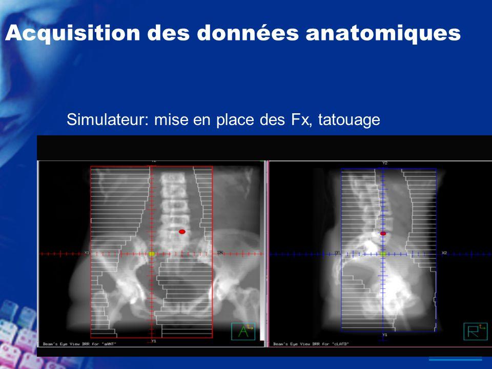 Acquisition des données anatomiques