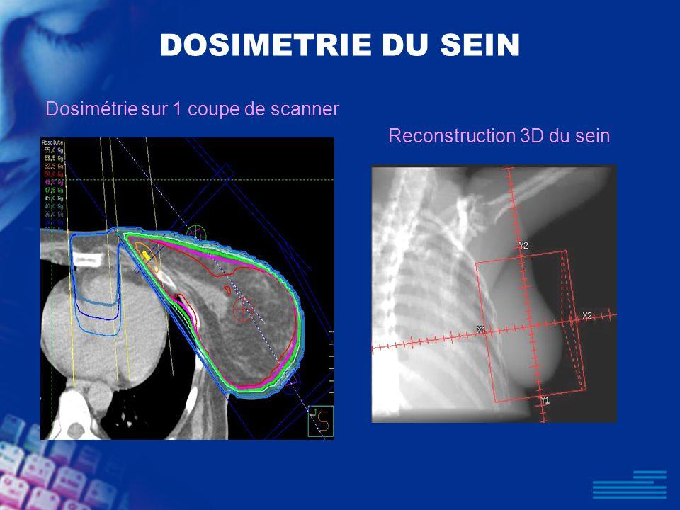 DOSIMETRIE DU SEIN Dosimétrie sur 1 coupe de scanner