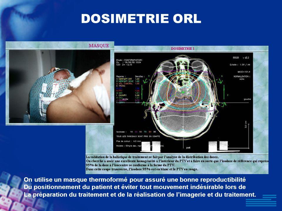 DOSIMETRIE ORL On utilise un masque thermoformé pour assuré une bonne reproductibilité.