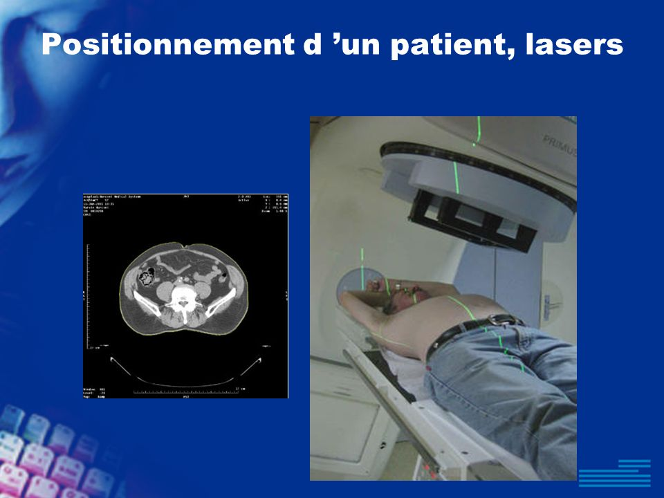 Positionnement d 'un patient, lasers