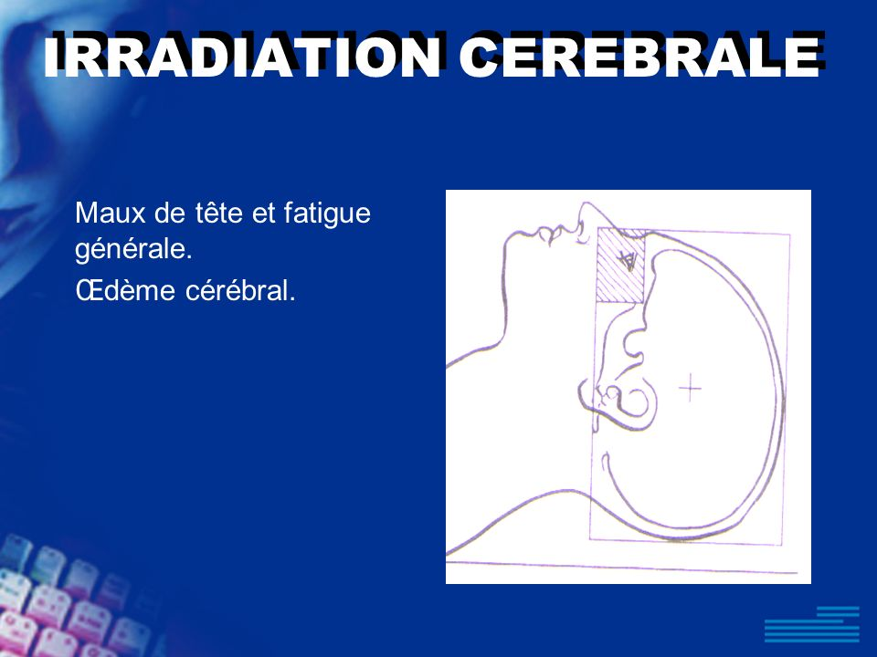 IRRADIATION CEREBRALE