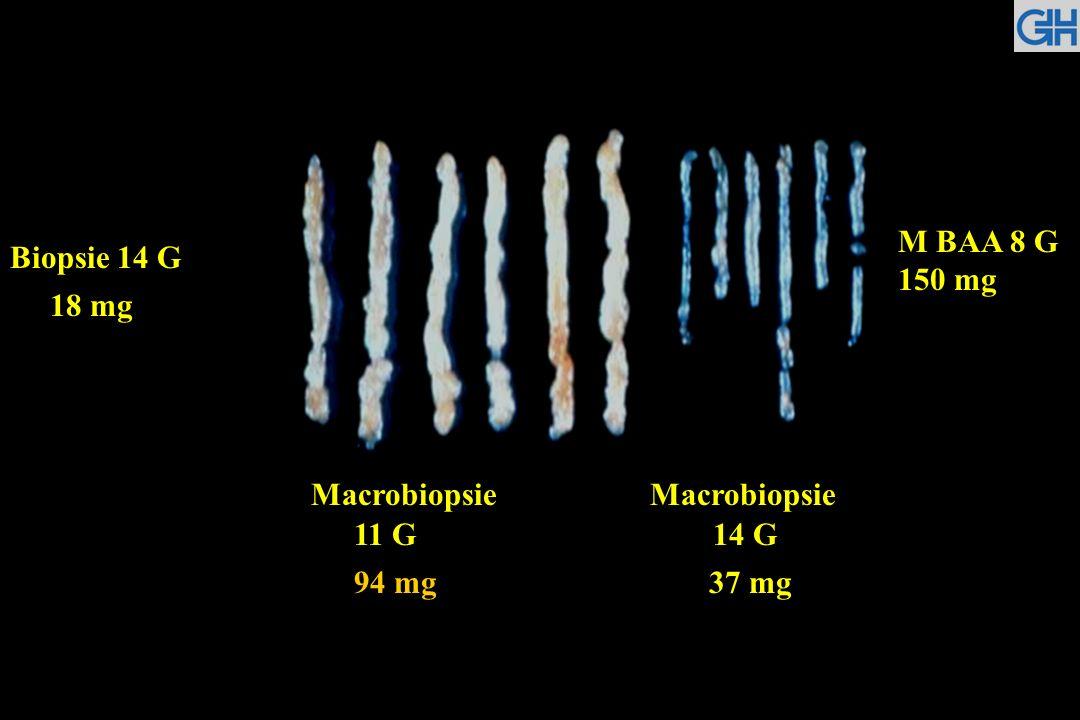 Macrobiopsie Macrobiopsie 11 G 14 G