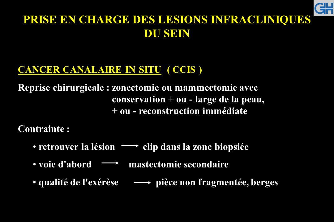 PRISE EN CHARGE DES LESIONS INFRACLINIQUES DU SEIN