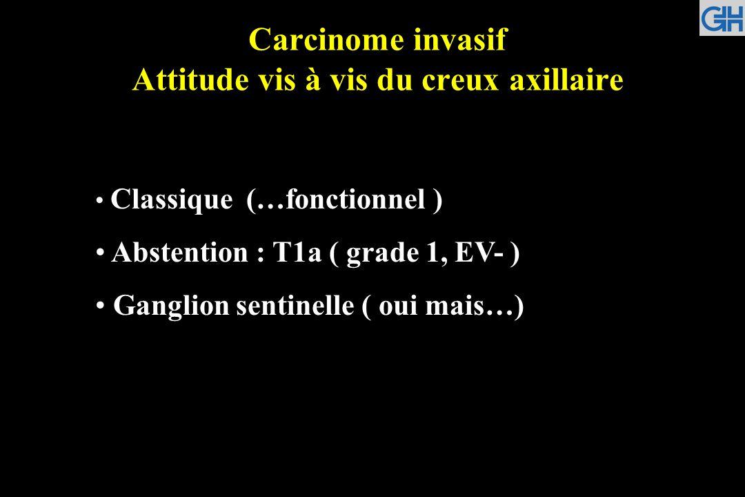 Carcinome invasif Attitude vis à vis du creux axillaire
