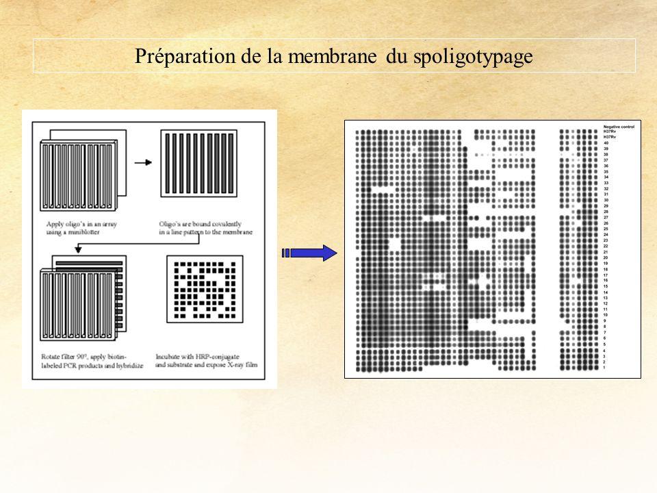 Préparation de la membrane du spoligotypage