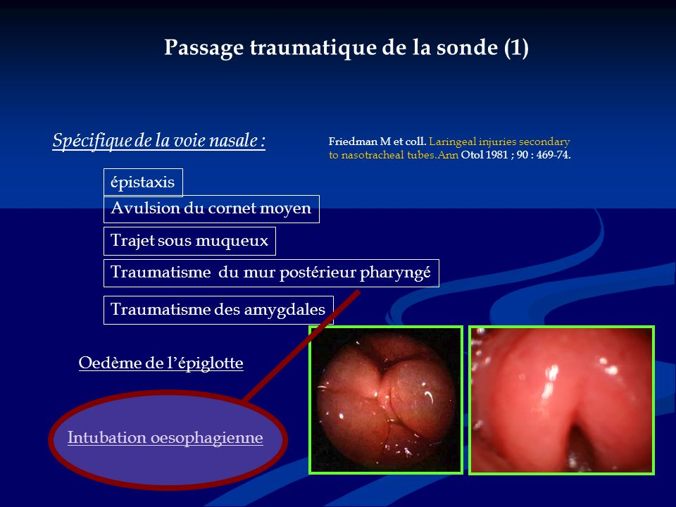Passage traumatique de la sonde (1)