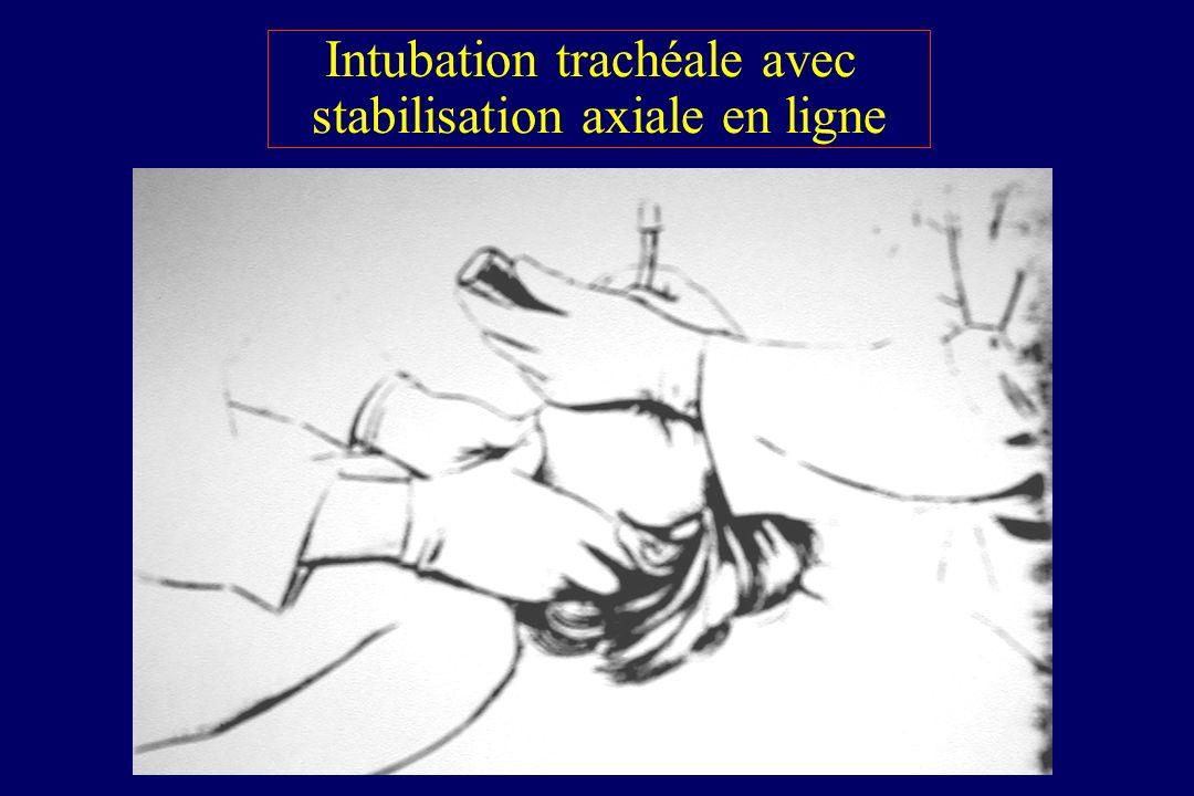 Intubation trachéale avec stabilisation axiale en ligne