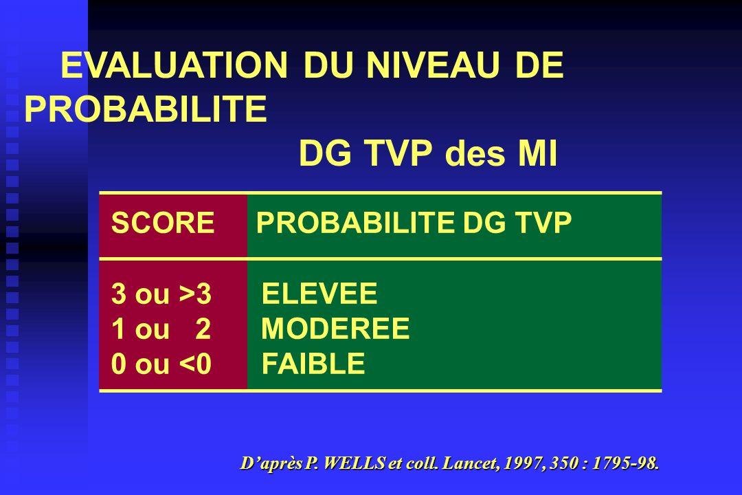 DG TVP des MI EVALUATION DU NIVEAU DE PROBABILITE