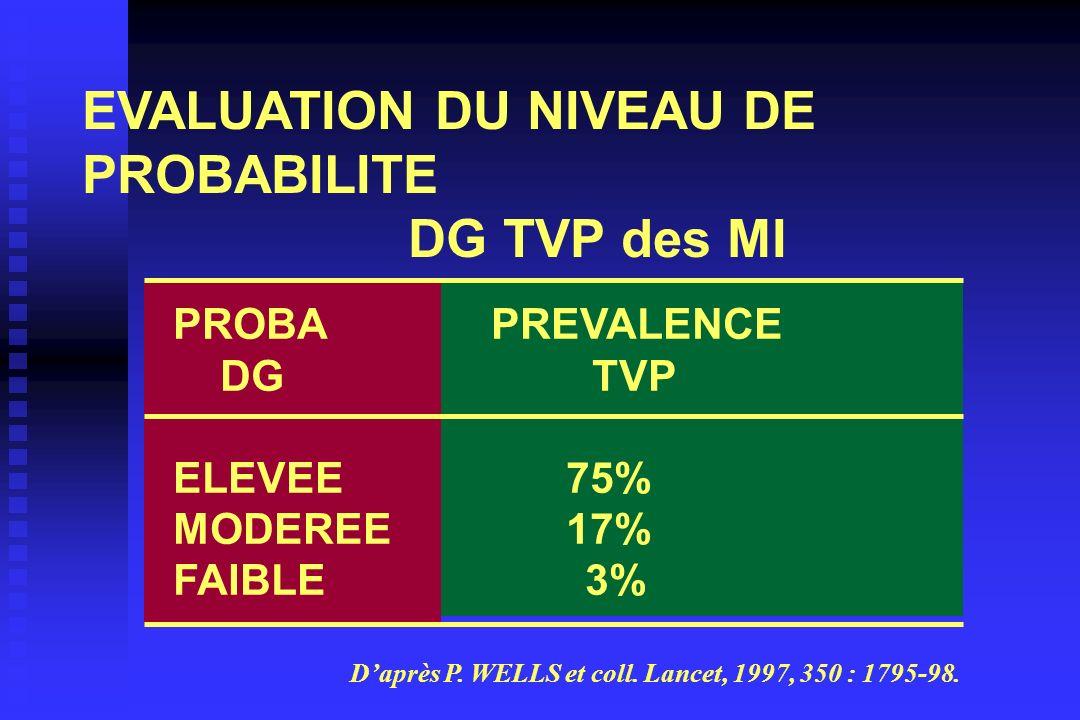 EVALUATION DU NIVEAU DE PROBABILITE DG TVP des MI
