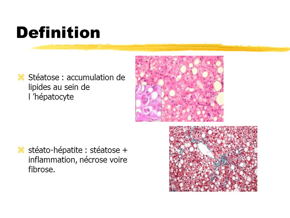 Definition Stéatose : accumulation de lipides au sein de l 'hépatocyte