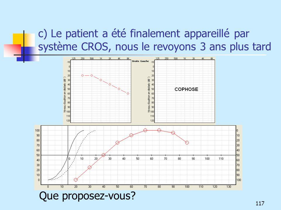 c) Le patient a été finalement appareillé par système CROS, nous le revoyons 3 ans plus tard