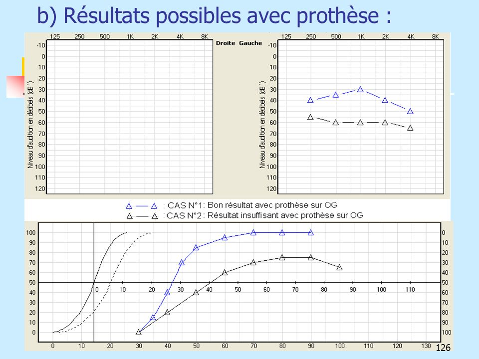 b) Résultats possibles avec prothèse :