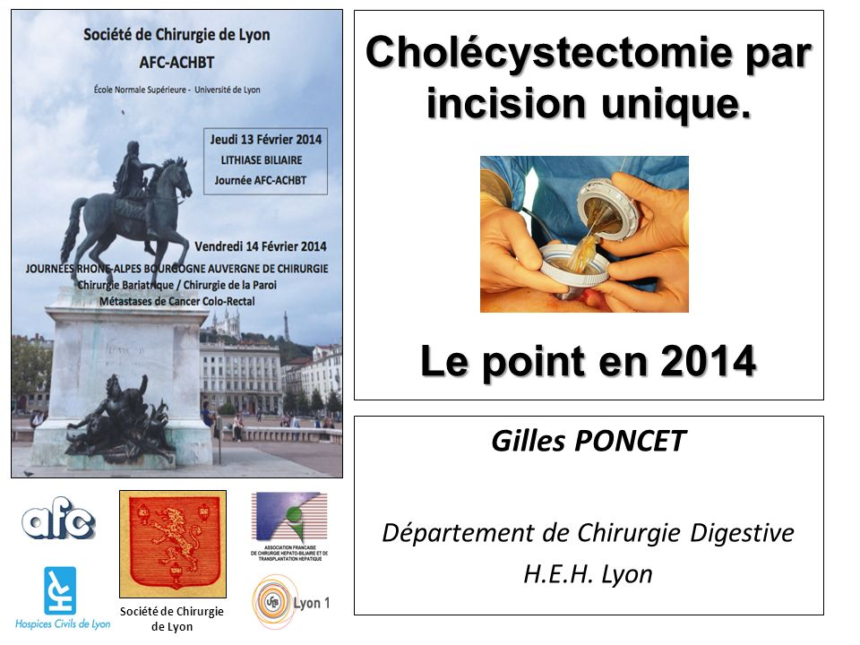 Cholécystectomie par incision unique. Le point en 2014