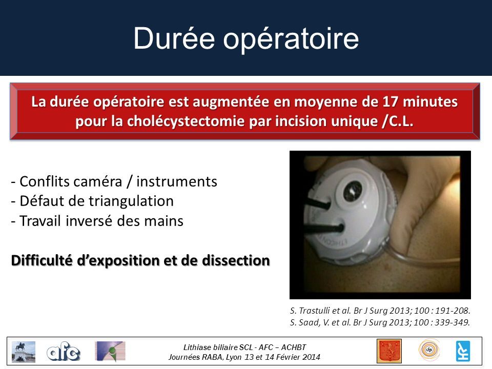 Durée opératoire La durée opératoire est augmentée en moyenne de 17 minutes pour la cholécystectomie par incision unique /C.L.