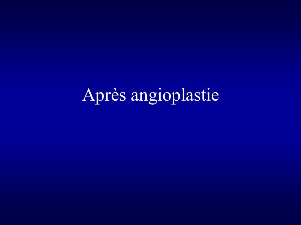 Après angioplastie