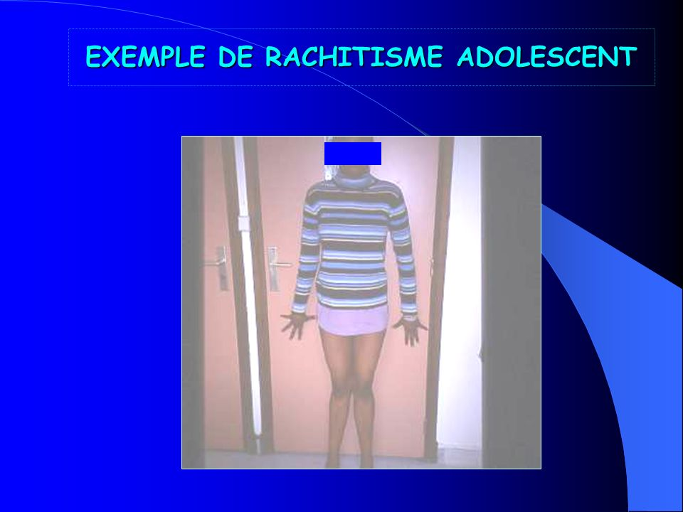 EXEMPLE DE RACHITISME ADOLESCENT