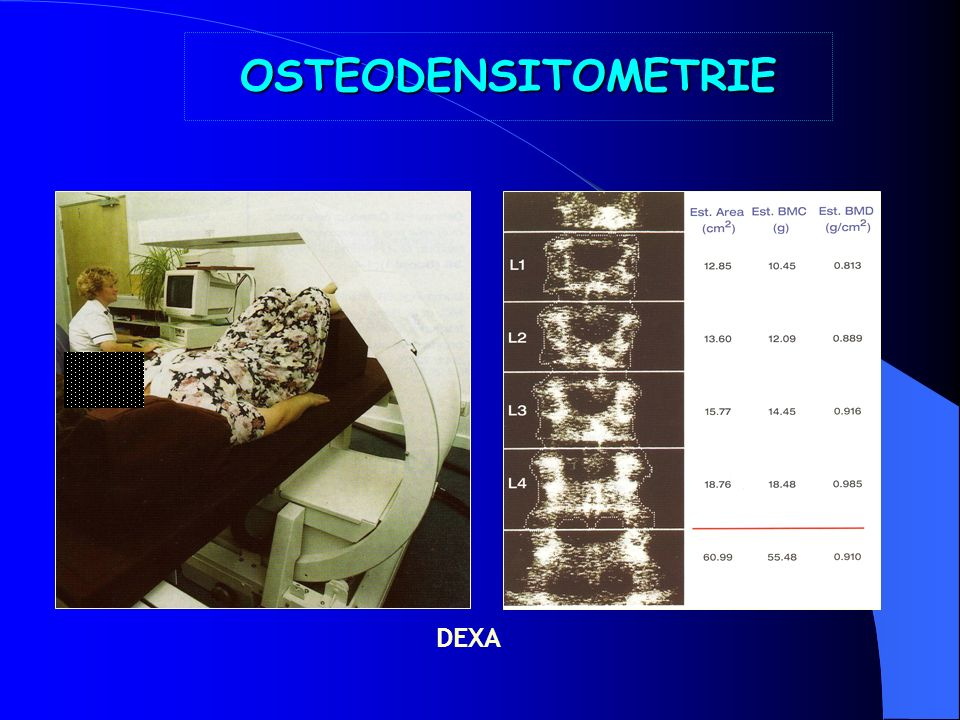 OSTEODENSITOMETRIE DEXA