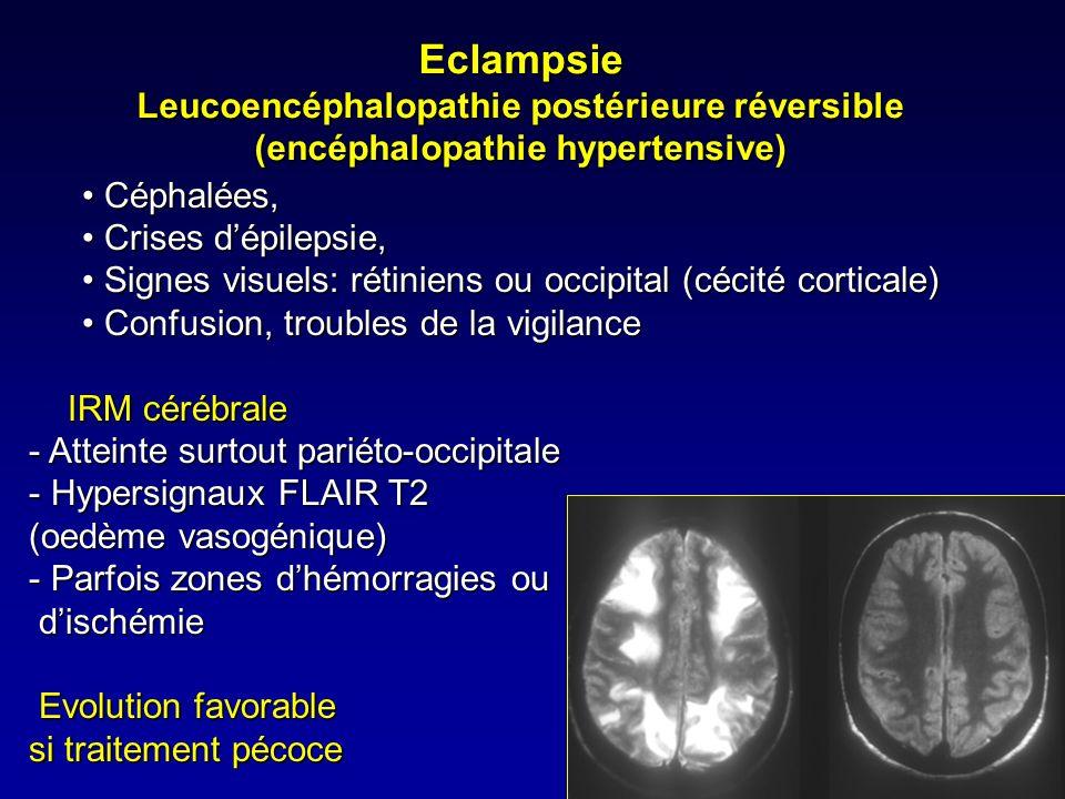 Eclampsie Leucoencéphalopathie postérieure réversible (encéphalopathie hypertensive)