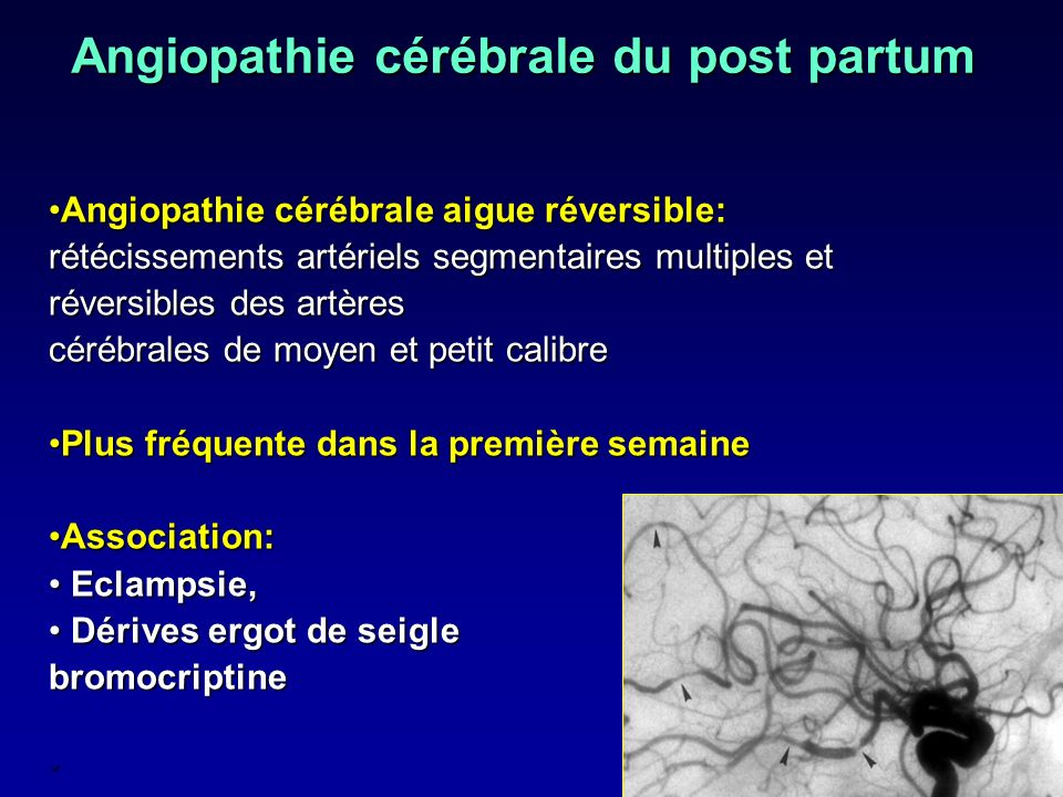 Angiopathie cérébrale du post partum