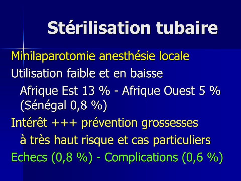 Stérilisation tubaire
