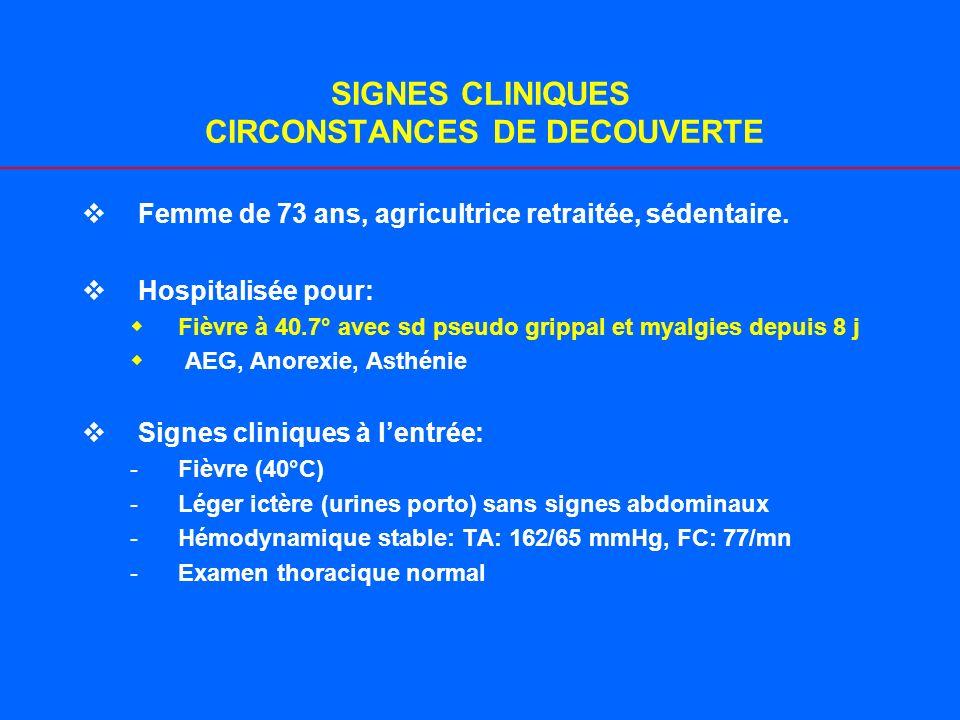 SIGNES CLINIQUES CIRCONSTANCES DE DECOUVERTE