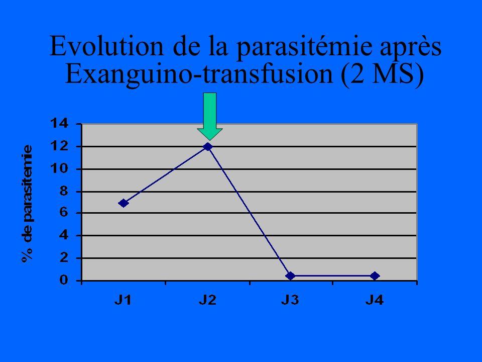 Exanguino-transfusion (2 MS)