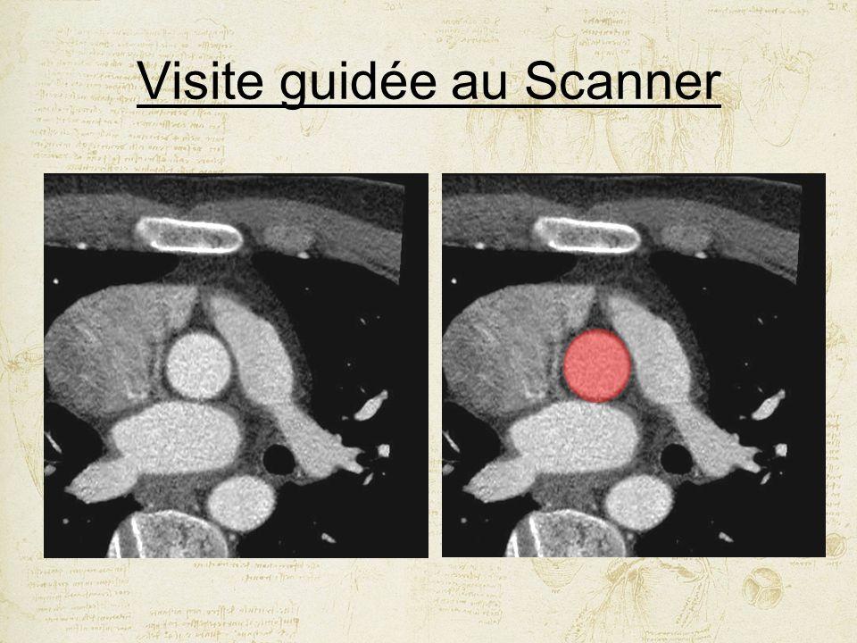 Visite guidée au Scanner