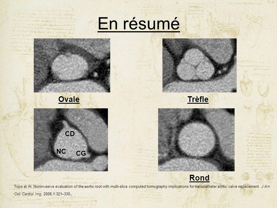 En résumé Ovale Trèfle Rond CD NC CG