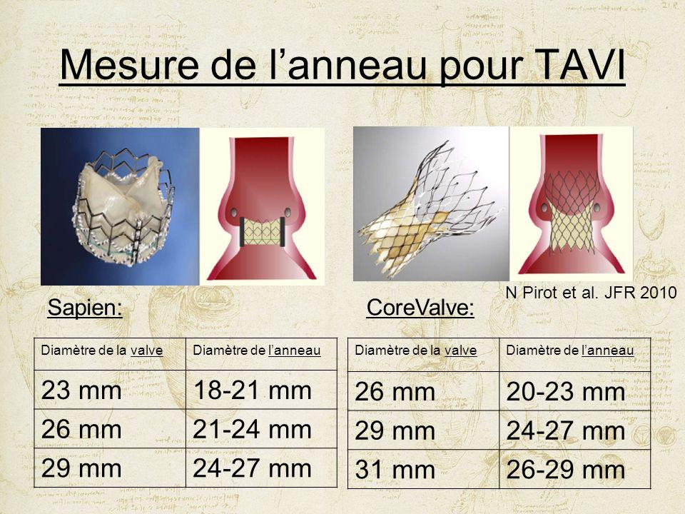 Mesure de l'anneau pour TAVI