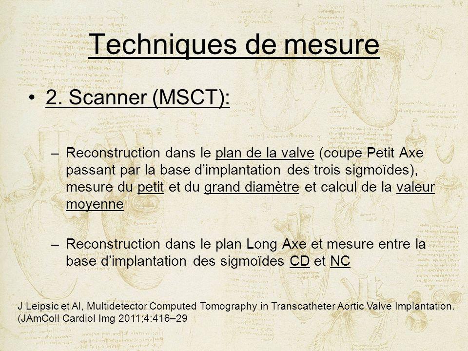 Techniques de mesure 2. Scanner (MSCT):