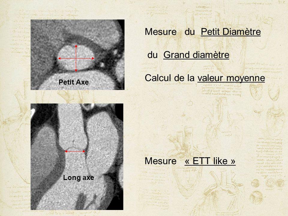 Mesure du Petit Diamètre du Grand diamètre Calcul de la valeur moyenne
