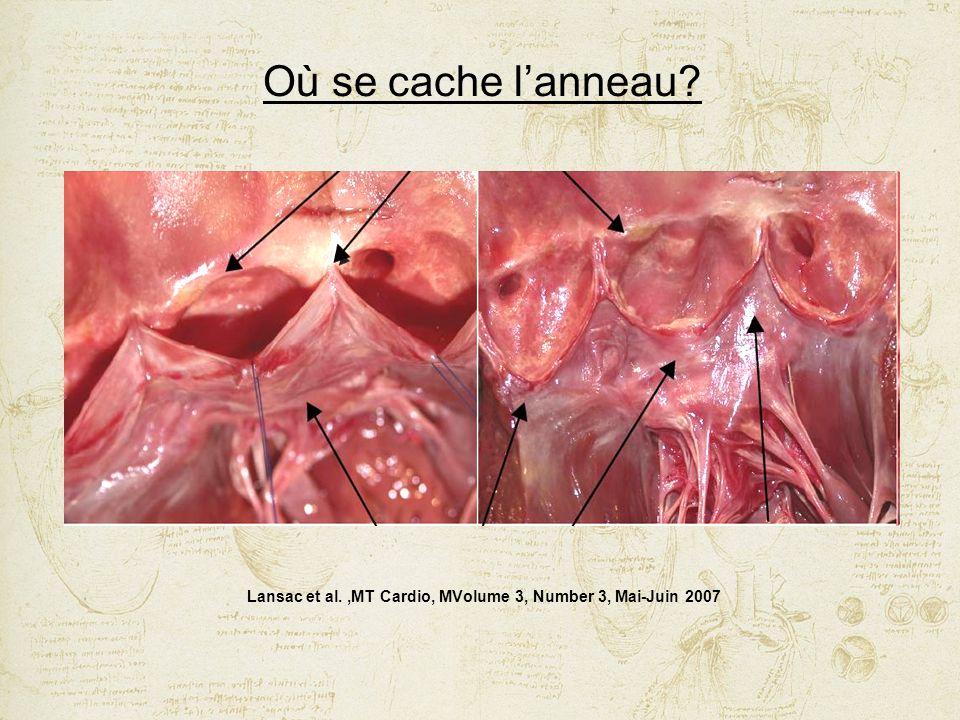 Lansac et al. ,MT Cardio, MVolume 3, Number 3, Mai-Juin 2007