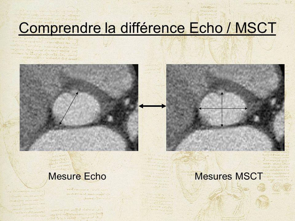Comprendre la différence Echo / MSCT