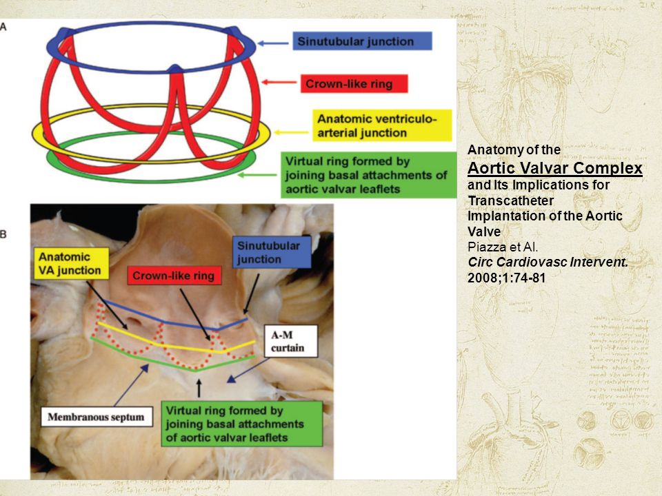 Aortic Valvar Complex Anatomy of the