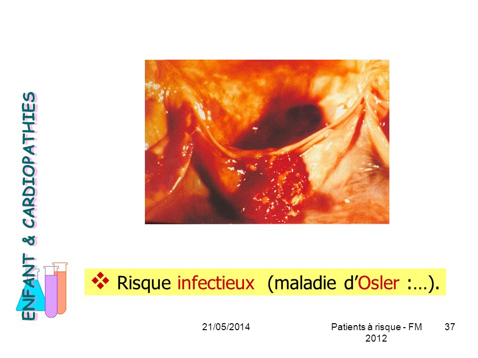 Risque infectieux (maladie d'Osler :…).