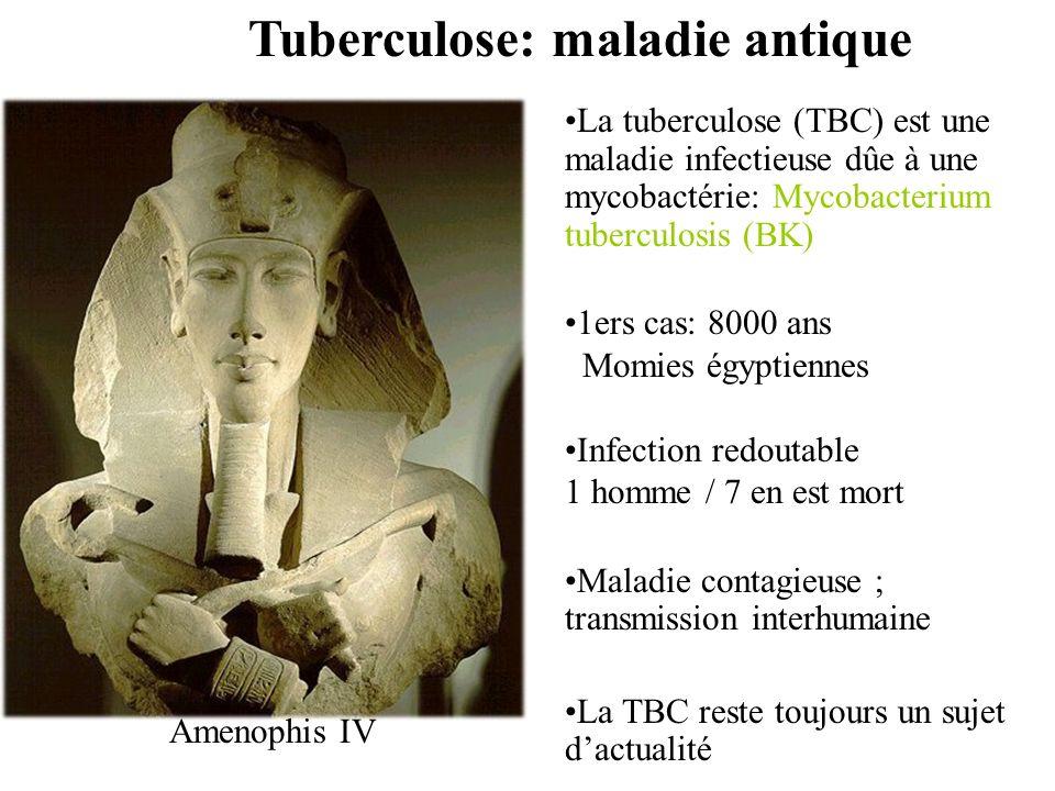 Tuberculose: maladie antique