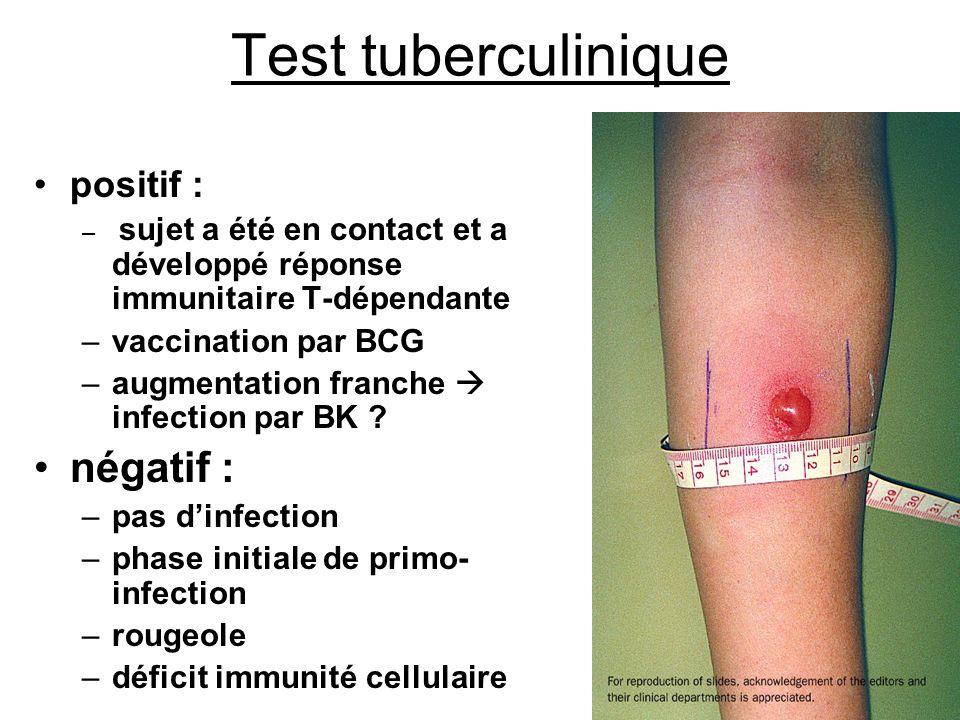 Test tuberculinique négatif : positif : vaccination par BCG