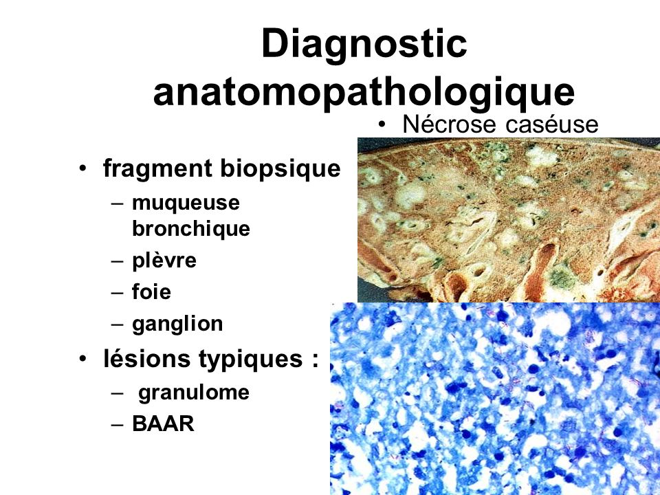 Diagnostic anatomopathologique