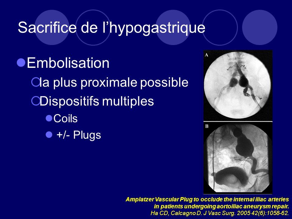 Sacrifice de l'hypogastrique