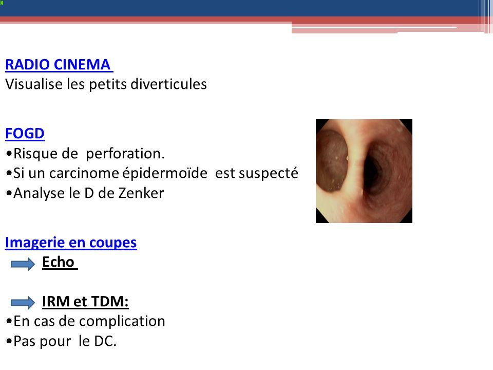 RADIO CINEMA Visualise les petits diverticules. FOGD. Risque de perforation. Si un carcinome épidermoïde est suspecté.