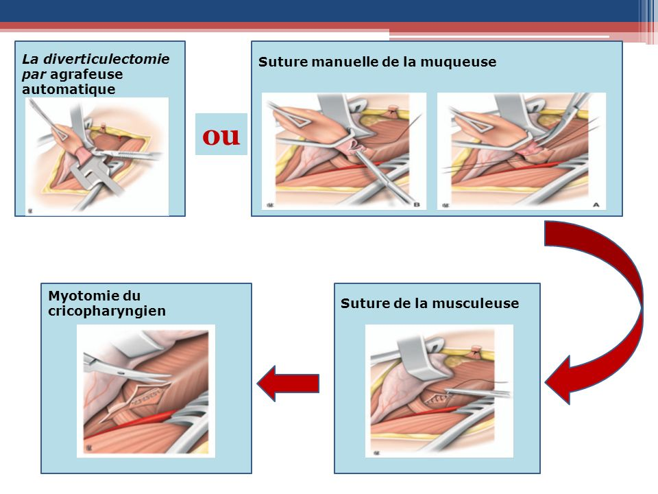ou La diverticulectomie Suture manuelle de la muqueuse