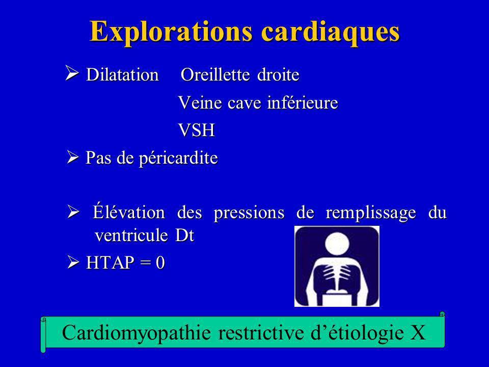 Explorations cardiaques