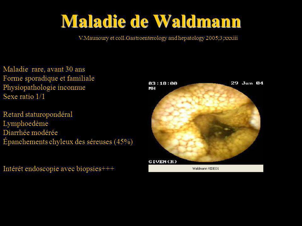 Maladie de Waldmann Maladie rare, avant 30 ans