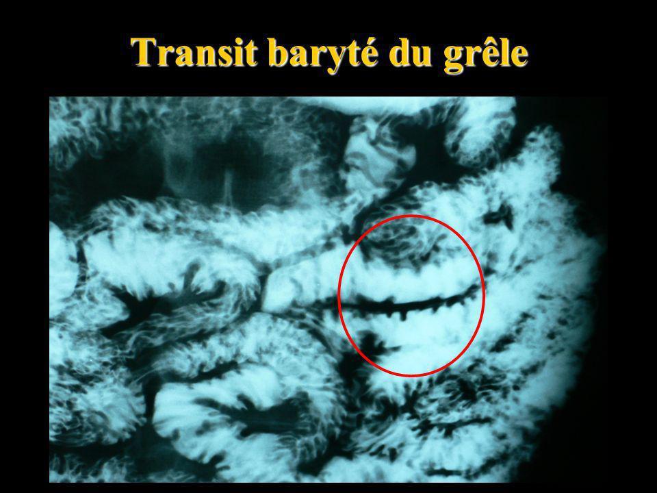 Transit baryté du grêle