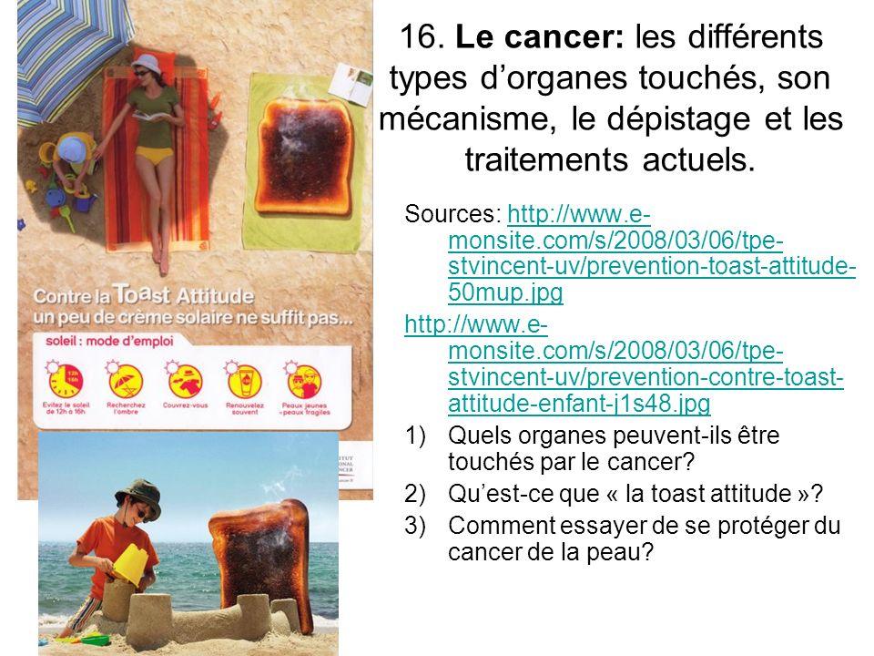 16. Le cancer: les différents types d'organes touchés, son mécanisme, le dépistage et les traitements actuels.