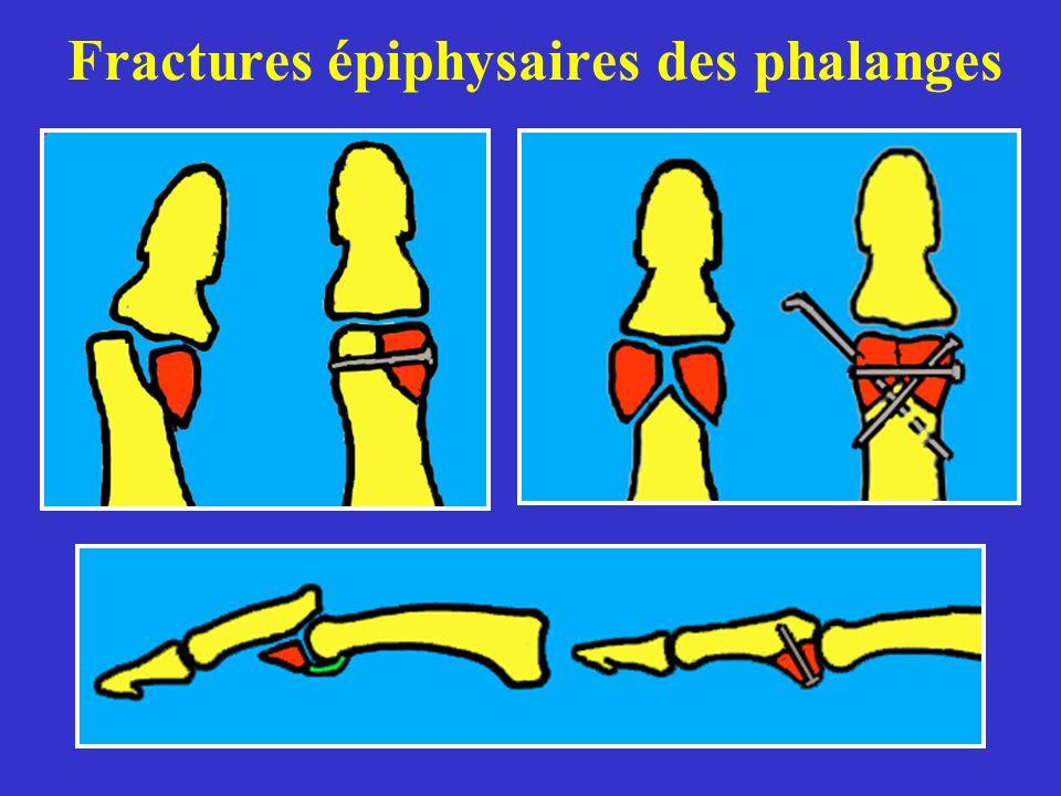 Fractures épiphysaires des phalanges