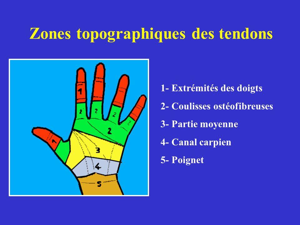 Zones topographiques des tendons