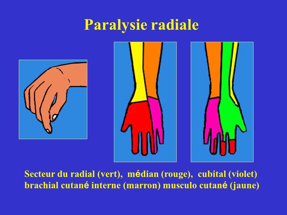 Paralysie radiale Secteur du radial (vert), médian (rouge), cubital (violet) brachial cutané interne (marron) musculo cutané (jaune)